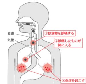 goenseihaien-01