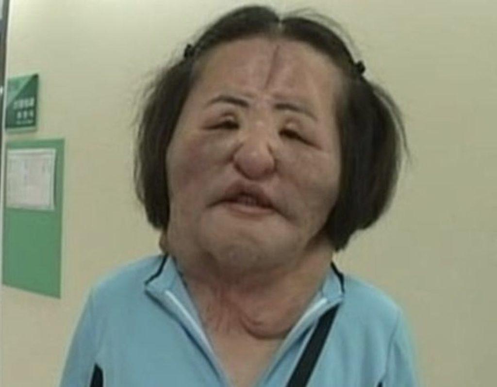 扇風機おばさんハンヘギョンの死因の真相は?手術失敗の経緯や精神障害と過去番組出演動画も!